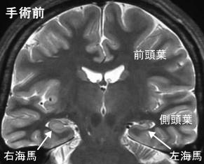 葉 側 てんかん 頭 症候性部分てんかん(後頭葉てんかん)